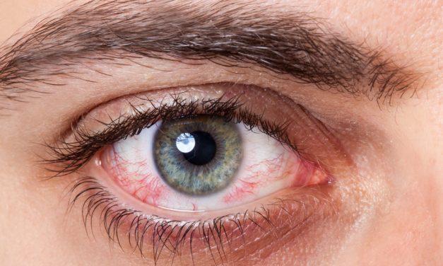 ¿Tienes ardor y comezón en los ojos? Puedes tener conjuntivitis, pero… ¿cuál?