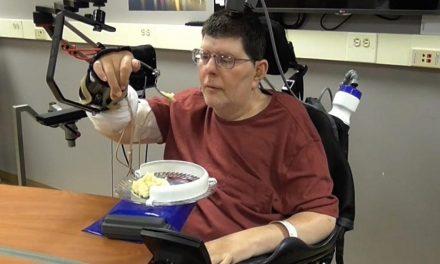 Neuroprótesis permite mover brazo y mano a tetrapléjico